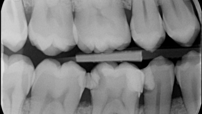 Vier jaar later: case report endodontische behandeling 46